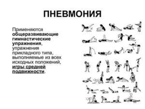 Дыхательная гимнастика для легких после пневмонии
