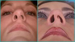 Заложена правая ноздря