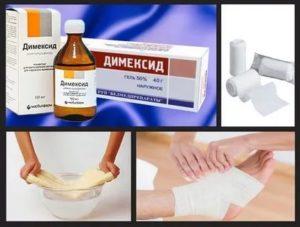 Как делать примочки с димексидом