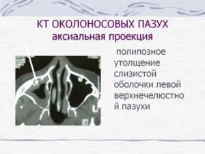 Утолщение слизистой оболочки носа