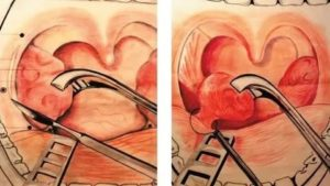 Аденотонзиллотомия послеоперационный период
