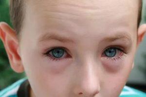 Конъюнктивит и температура у ребенка