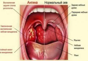 Болит под языком больно глотать