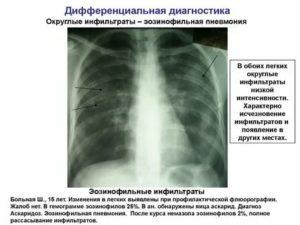 Эозинофильная пневмония симптомы