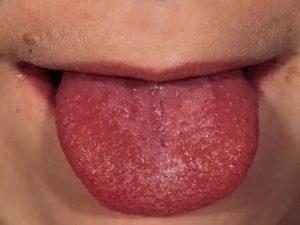 Ожог языка фото