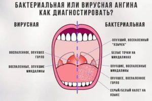 Как отличить тонзиллит от ангины