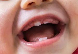 Как отличить прорезывание зубов от болезни