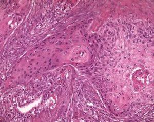 Рак легких аденокарцинома