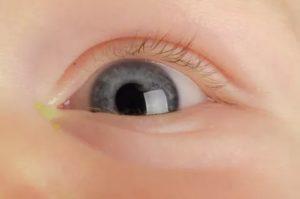 У ребенка из глаза течет желтая жидкость