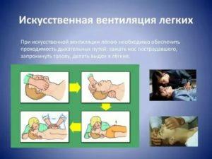Виды искусственной вентиляции легких