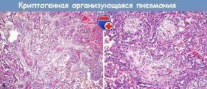 Криптогенная организующаяся пневмония