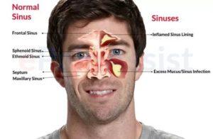 Почему болит лоб между бровями