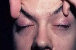 Головная боль в области бровей