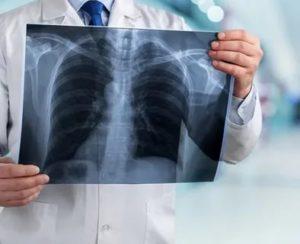Может ли туберкулез перейти в рак