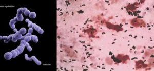 Streptococcus agalactiae group b