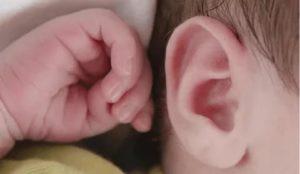 Ребенок чешет уши комаровский