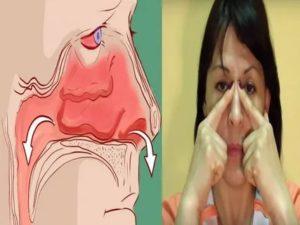 Нос не дышит без капель что делать