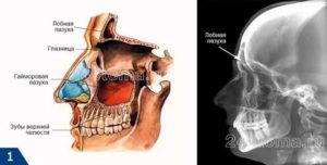 Гайморова пазуха расположена в кости