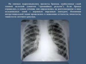 Рентгенологические признаки бронхита