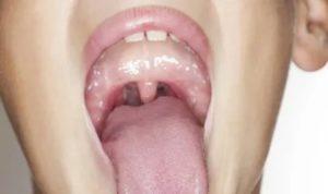 Рыхлые миндалины у ребенка фото