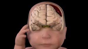 Синусопатия головного мозга что это такое
