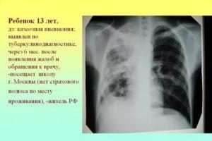 Может ли бронхит перейти в туберкулез