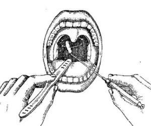 Взятие мазка из носоглотки на менингококк алгоритм