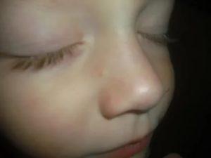 Мелкие прыщики на носу у ребенка