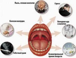 Можно ли греть горло когда оно болит