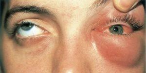 Глаз отёк и гноится