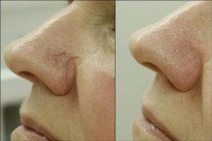 Коагуляция сосудов носа