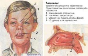 Аденоиды функция в организме