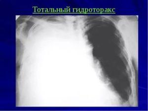 Тотальный гидроторакс