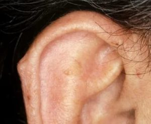 На ушной раковине болезненное уплотнение
