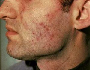 Туберкулез кожи симптомы первые признаки фото