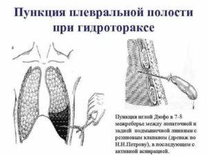 Пункция плевральной полости при гидротораксе