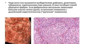 Фиброзное воспаление