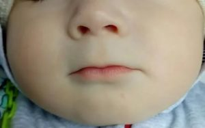 У ребенка синеет под носом