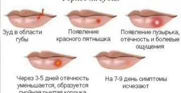 Сколько длится герпес на губах