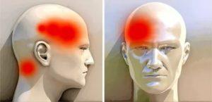 Боль в лобной части головы при наклоне