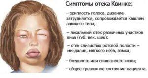 Отёк квинке симптомы и лечение у детей