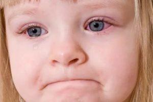 У ребенка красные глаза и насморк