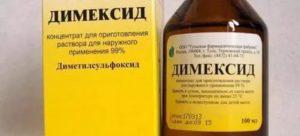 Димексид при ангине
