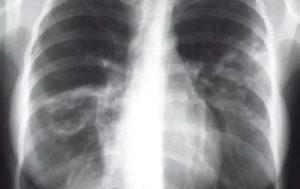 Плевропульмональные спайки в лёгких
