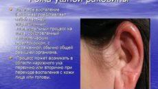Перихондрит ушной раковины лечение