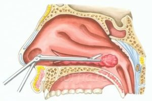 Конхотомия нижних носовых раковин