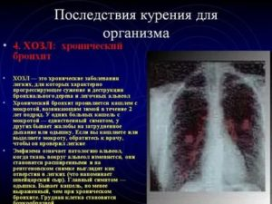 Можно ли курить при пневмонии легких