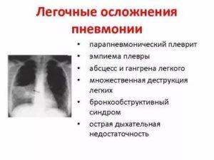 Плевропневмония последствия