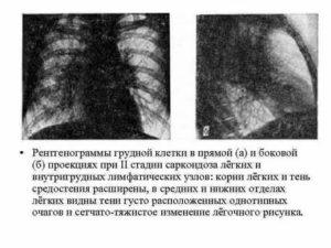 Саркоидоз лимфоузлов средостения