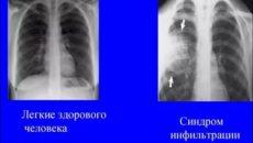 Флюорография курильщика и здорового человека фото